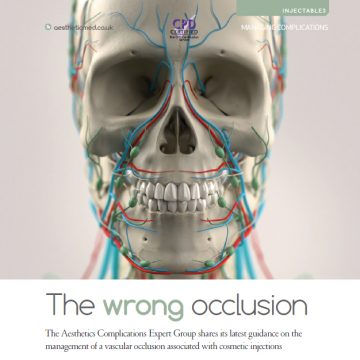 The Wrong Occlusion