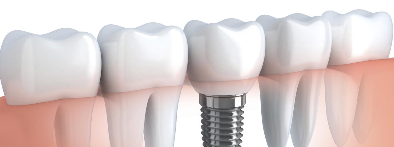 Implantazia