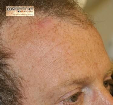 Cyst Removal Cosmedics Skin Clinics London And Bristol