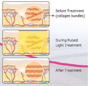laser-skin-tightening-how-it-works