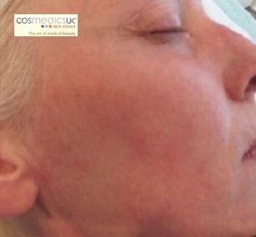 Laser Rosacea Redness Treatment Cosmedics Skin Clinics