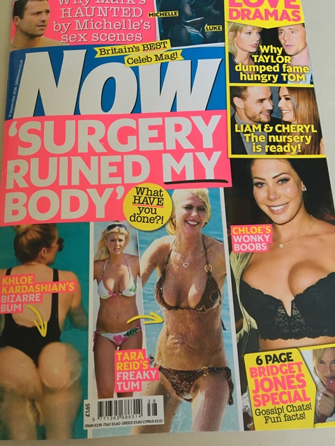 now surgery ruined my body