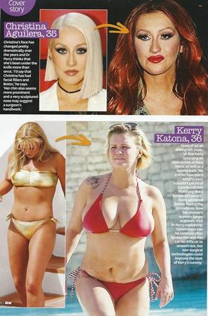 now magazine cosmetic surgery