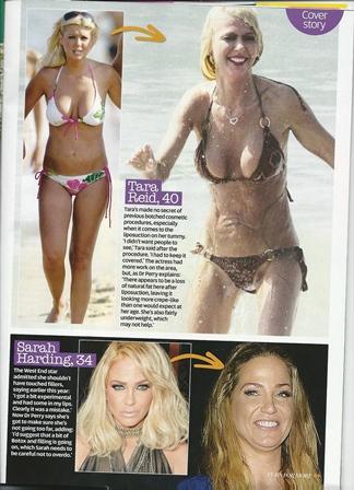 now magazine surgery ruined my body