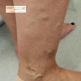 varicose-vein-treatment-leg-before