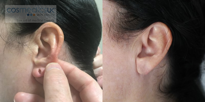 before and after earlobe repair