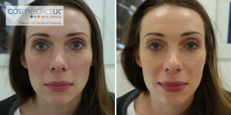 before and after BOTOX + fillers