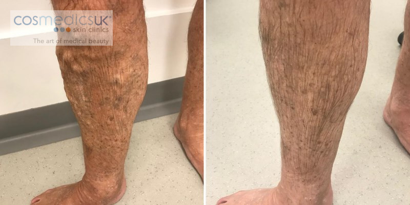 Before + After Varicose Vein Treatment