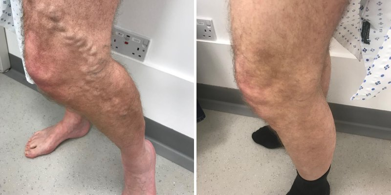 Before and after varicose vein treatment EVLA