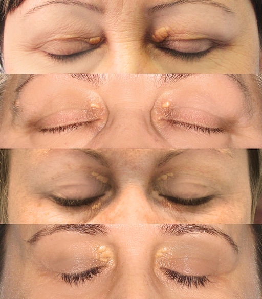 Eyelid-Xanthelasma-removal-clinic
