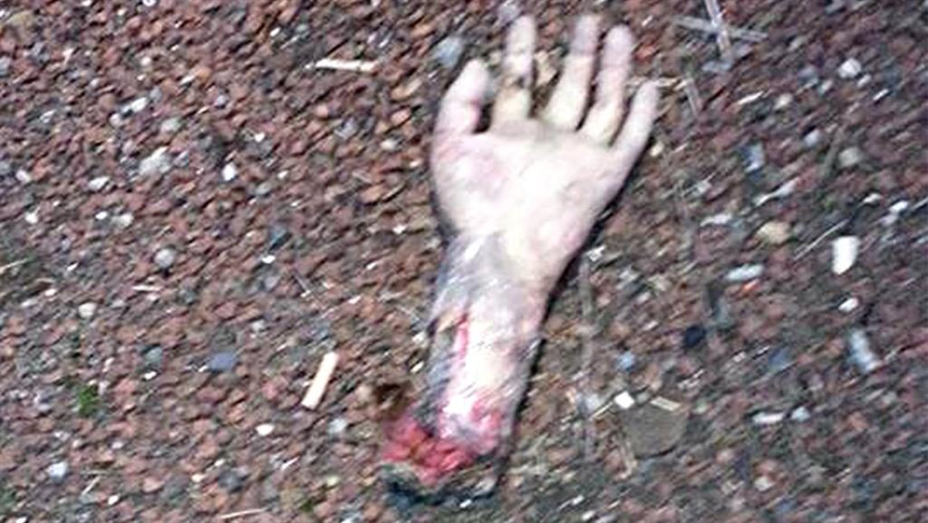 Fake severed hand in central reservation leads to A19 closure