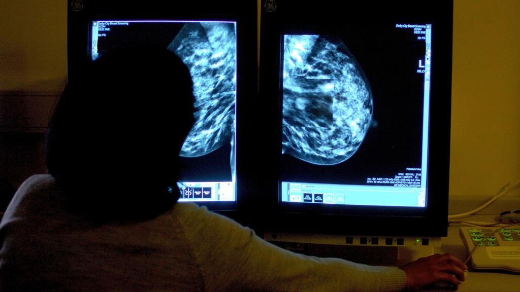 Vital tool: Consultant views a scan