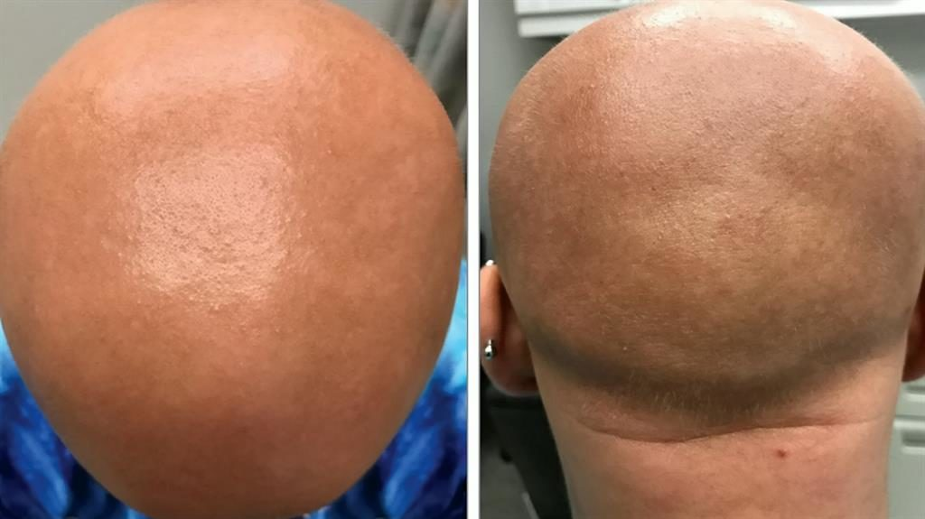 Before: The patient and then six weeks after starting treatment