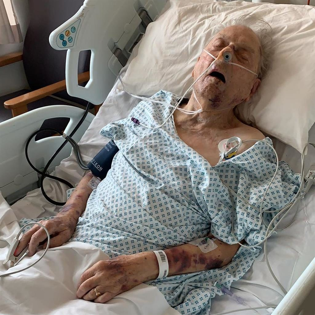Vicious attack: Peter Gouldstone in hospitial after he was robbed in his own home (pictured below) PICTURES: PA