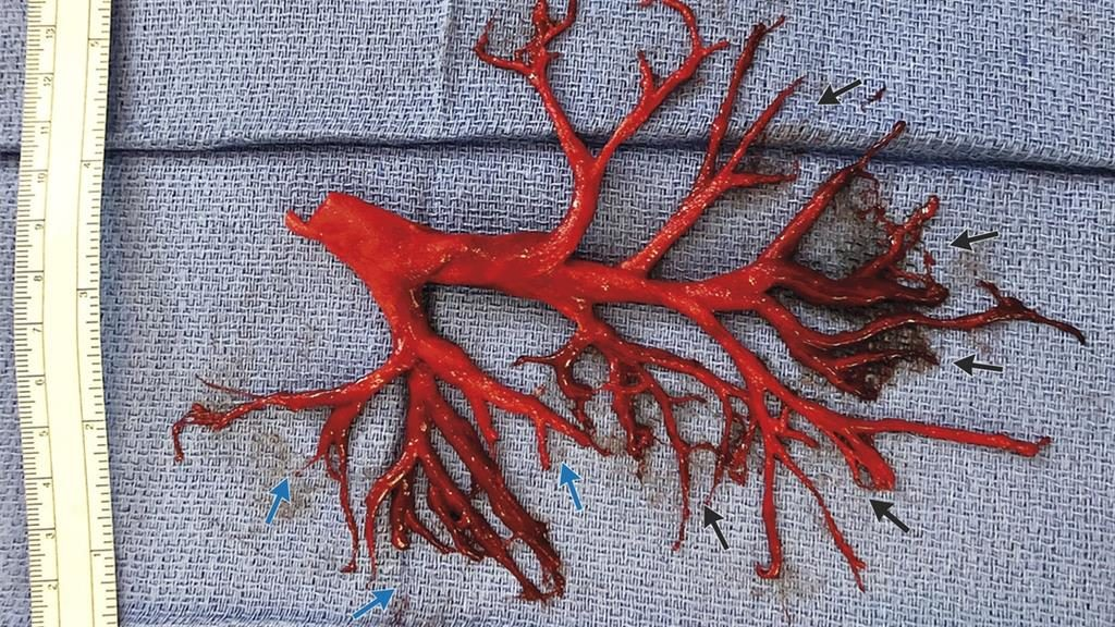 Doctors amazed after man coughs up blood clot of lung bronchial tree