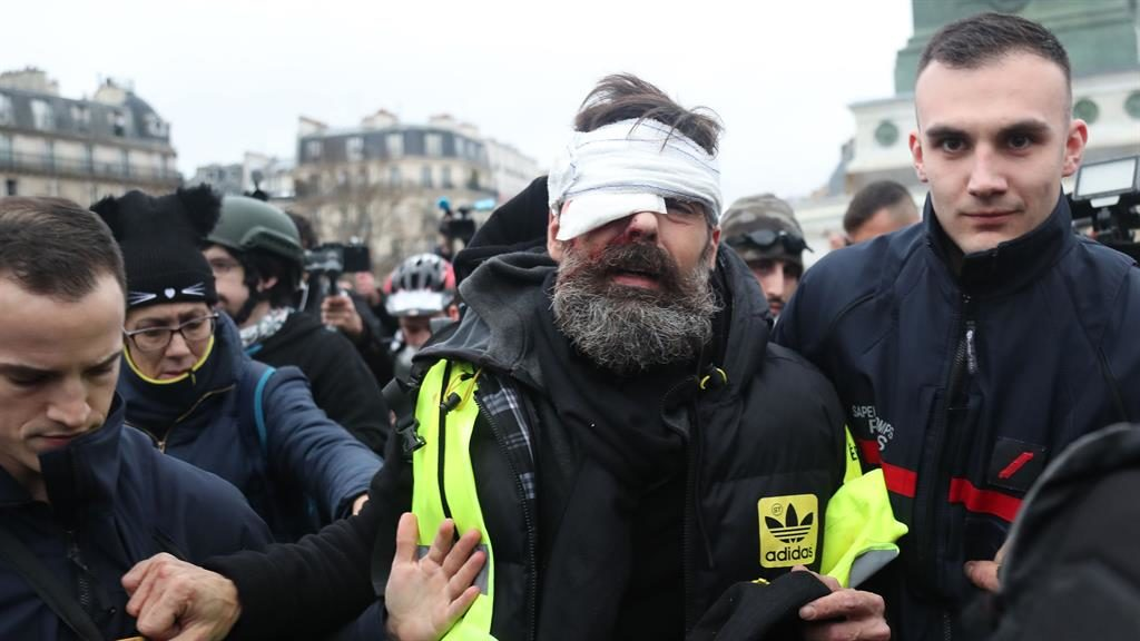 Caught on camera: Mr Rodrigues is led away after being hurt while filming a protest in Paris on Saturday PICTURE : AFP