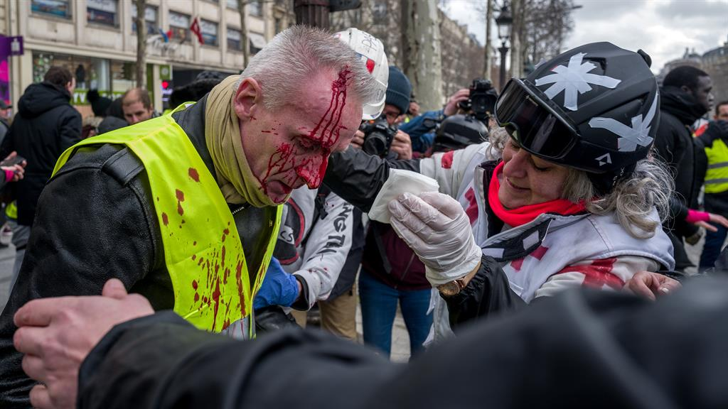 Battered A bloodied man is treated on the Champs Elysee