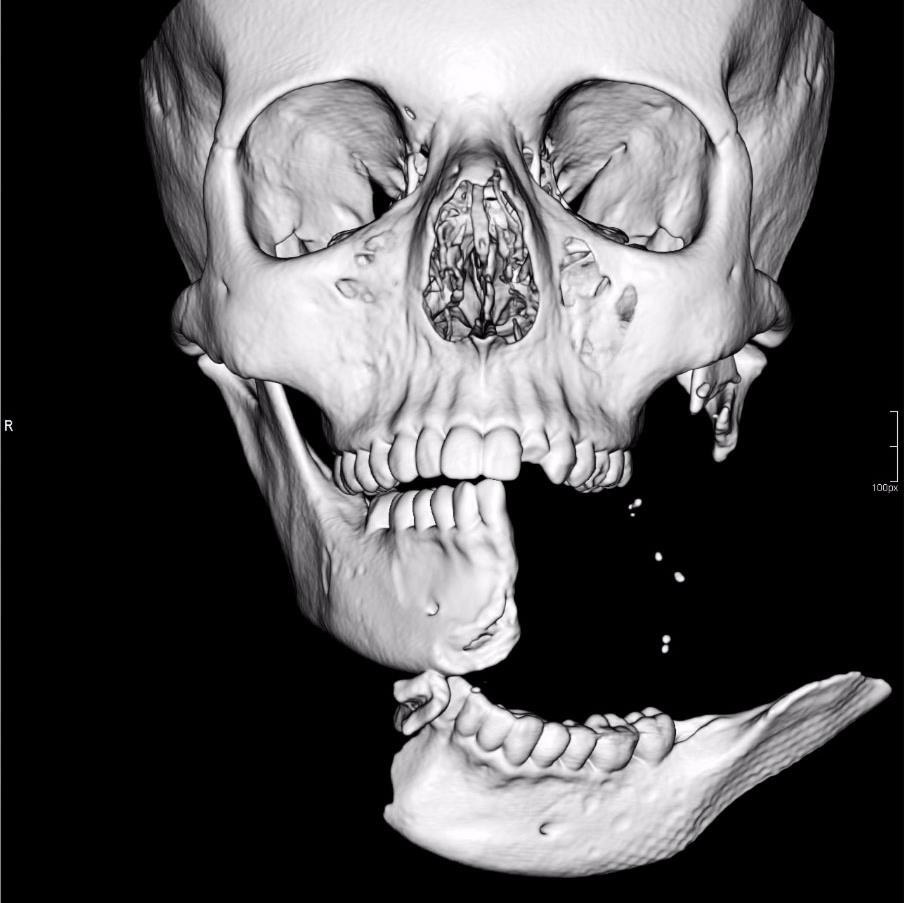Shocking: Hospital CT scan of Emily's shattered jaw after her riding accident