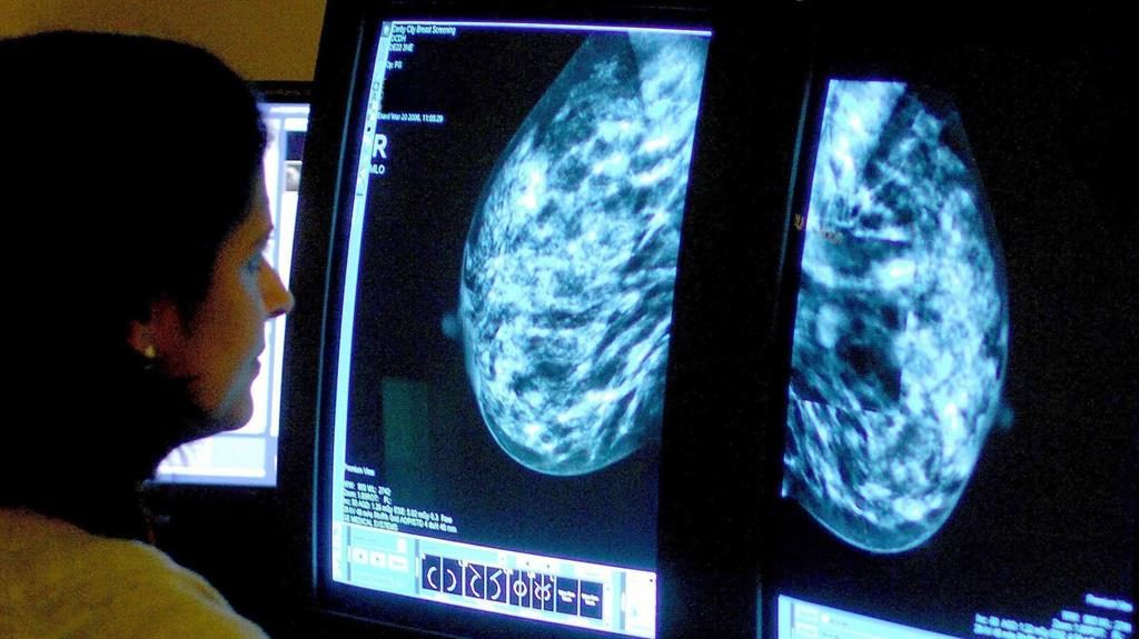 Multimillion pound boost for Manchester scientists to detect cancer earlier