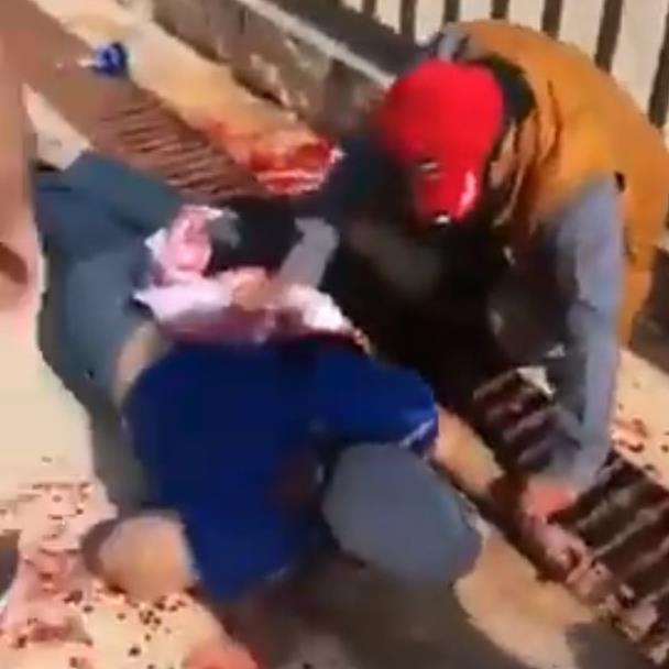 Stabbed: A victim receives treatment