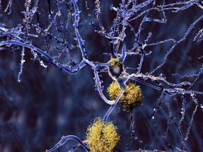A CGI image of neurones in a brain, with some neurones suffering from plaque