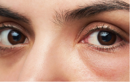 5 Tips to Save Your Dark Under Eyes
