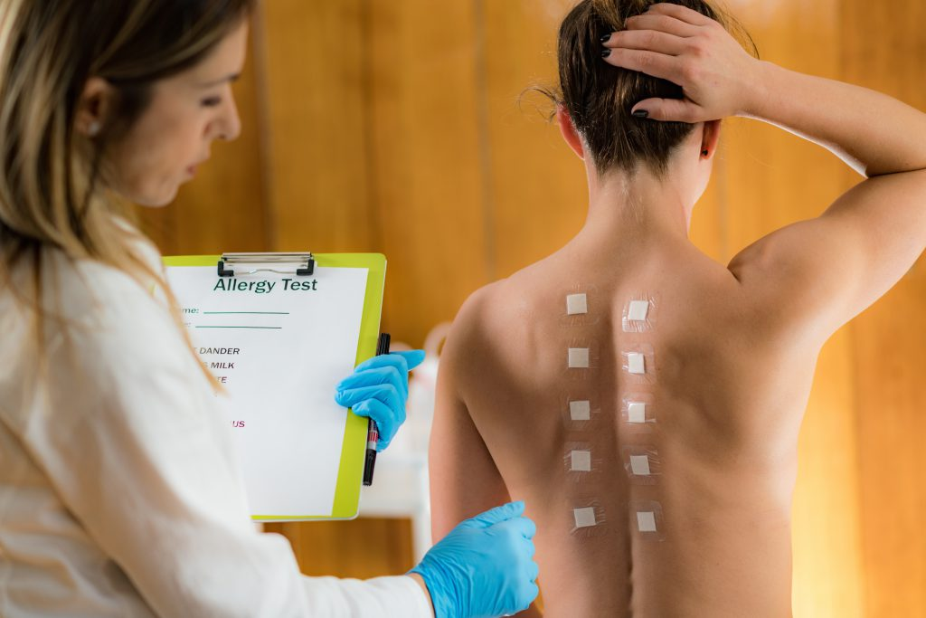 Doctor Doing a Skin Allergy Test - don't ignore your allergy symptoms