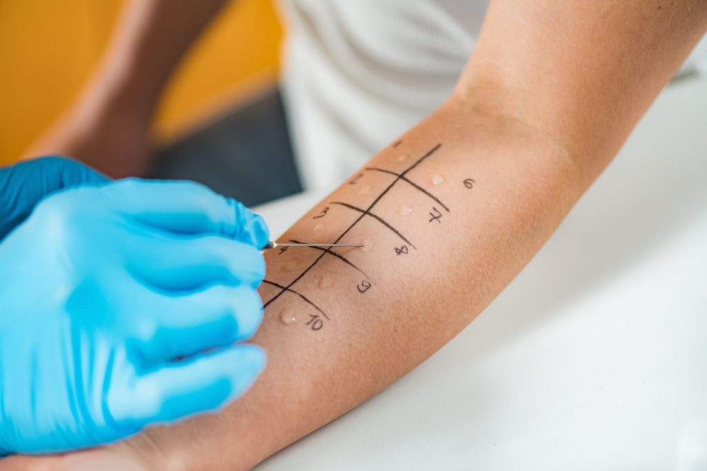 allergy test - switching from veggie to vegan tips