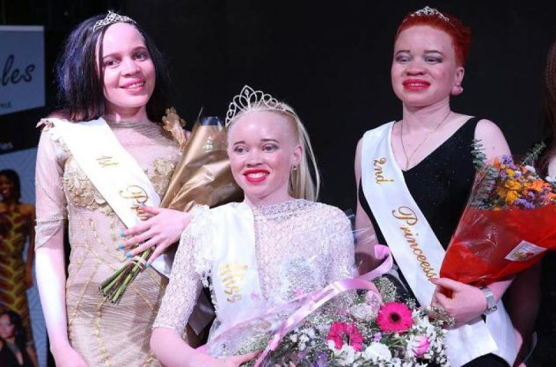 Zimbabwe holds Miss Albinism beauty pageant to fight stigma