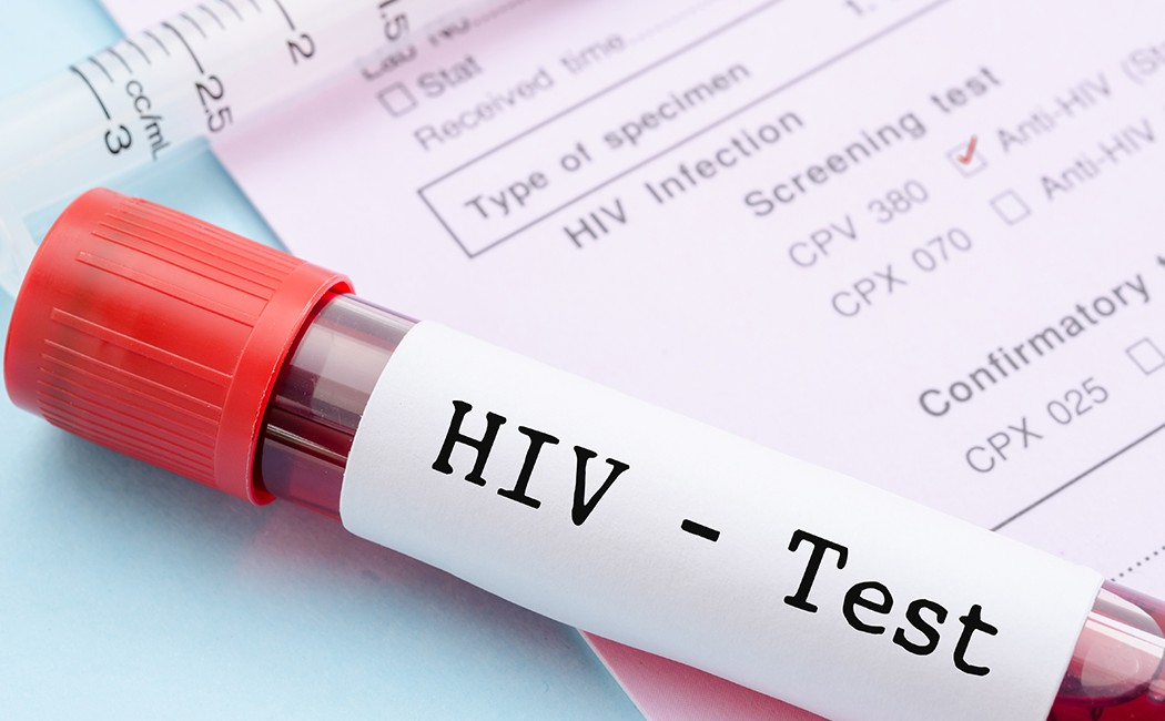 Torrent of blows as wife insists on HIV test