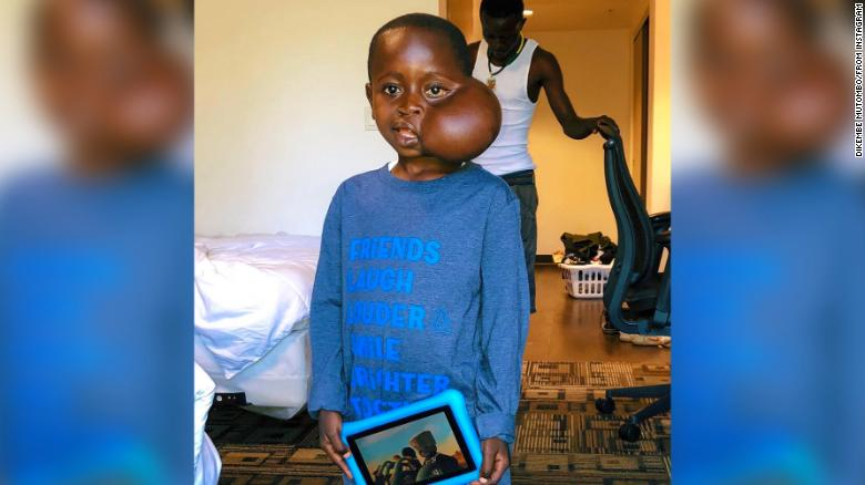 Congolese boy who sought US facial tumor removal dies