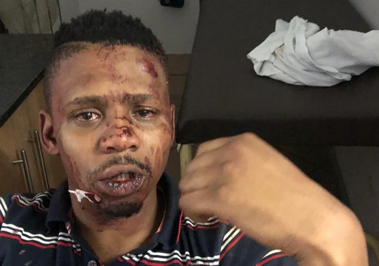 SABC presenter left for dead in race motivated attack