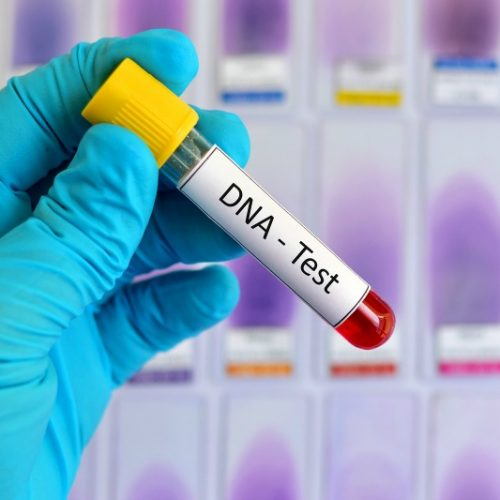 Affordable DNA testing brings nightmares to Zim's silent rape victims