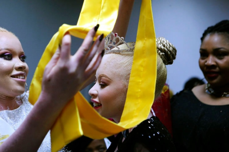 Albinism pageant in Zimbabwe joyfully breaks down prejudice