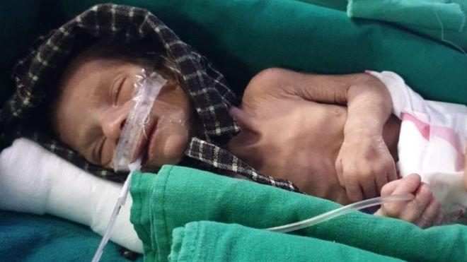 Newborn girl found alive in shallow grave in India