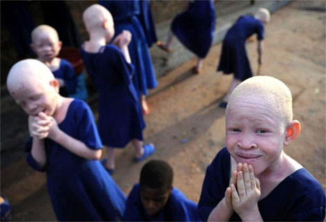 Albino girl's hand chopped off in Zambia