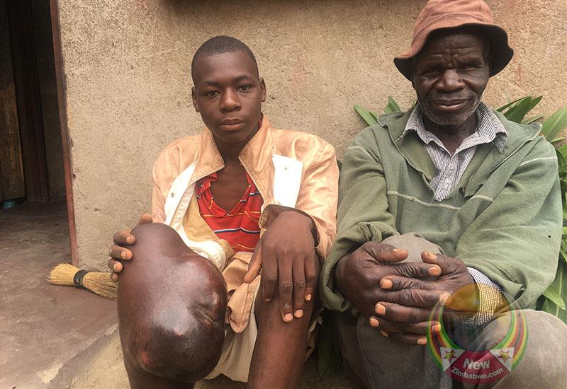 Cancer stricken boy 'doctor' seeks help to ease pain