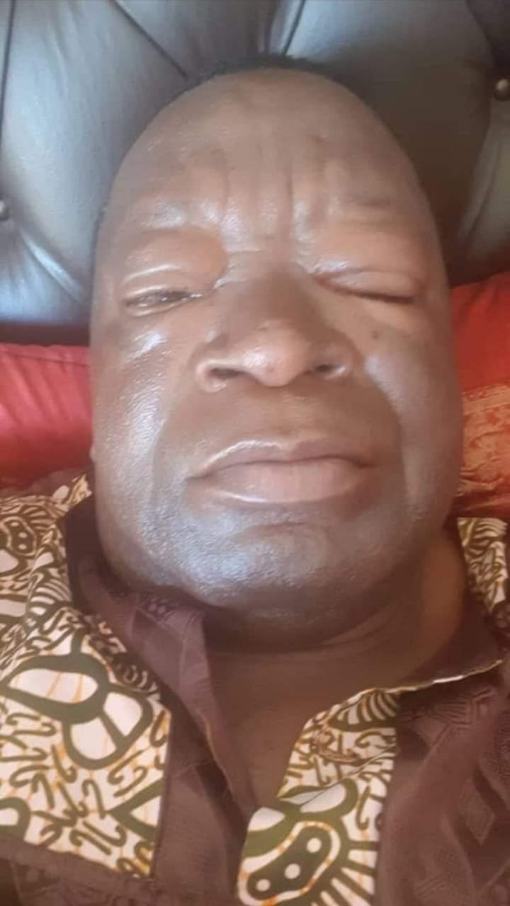Poisoning Fears As Victor Matemadanda Falls Ill