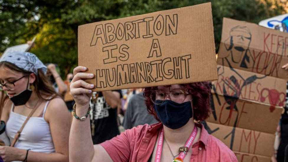 Texas Doctor Sued In First Challenge Of New Abortion Law