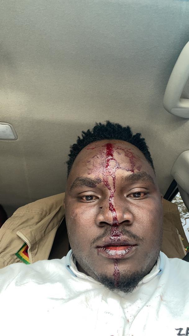 Zanu PF Officials Trade Barbs As Violence Erupts At Manicaland PCC Meeting