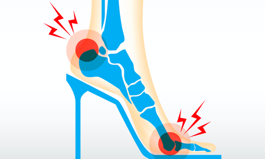 The welcome demise of the high-heeled shoe