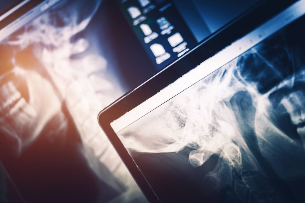 Use Cases for Machine Learning in X-Ray - Signify Research