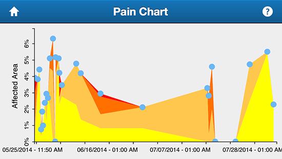 shin-splints-pain-chart