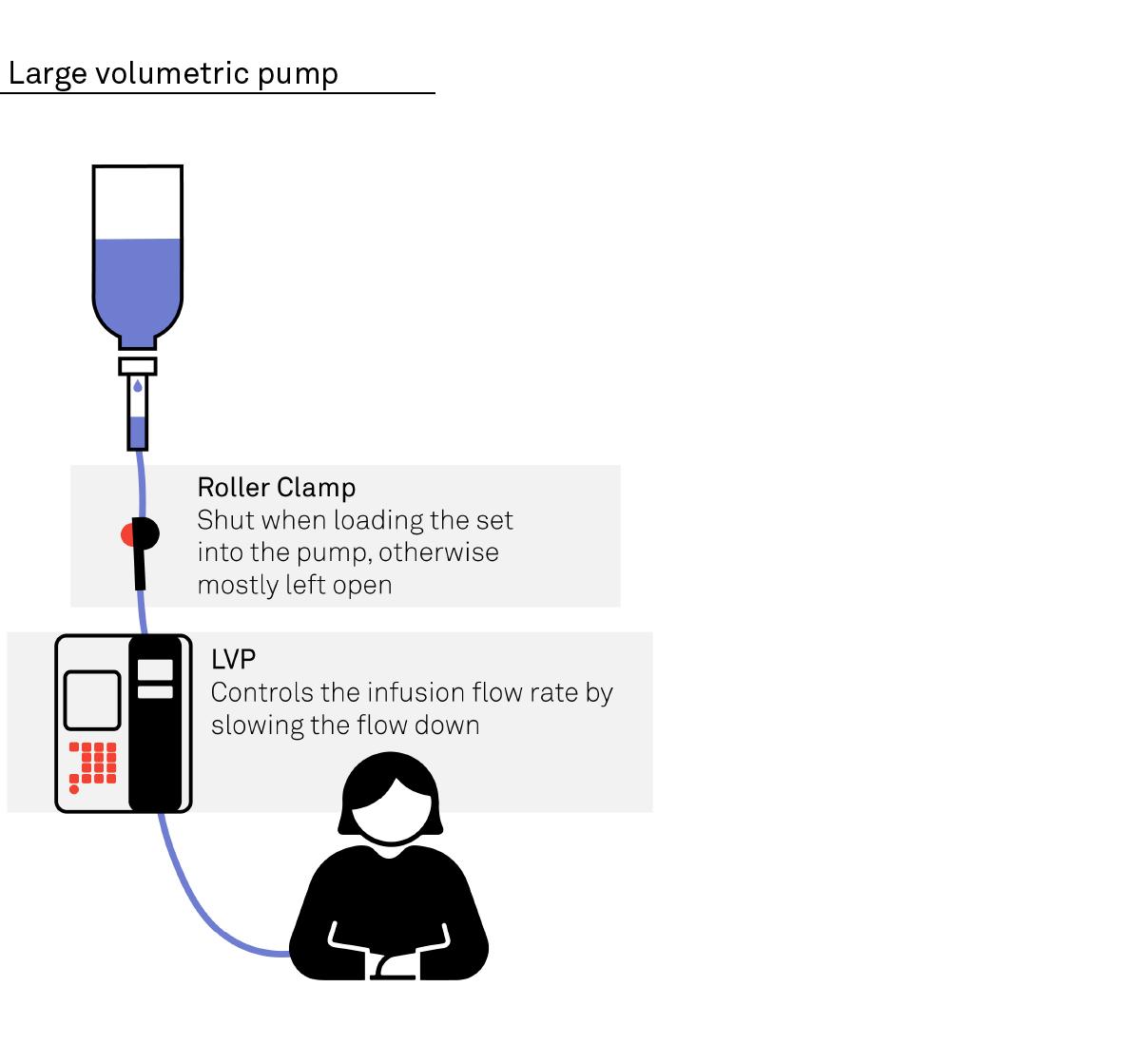 Diagram of how a large volumetric pump works