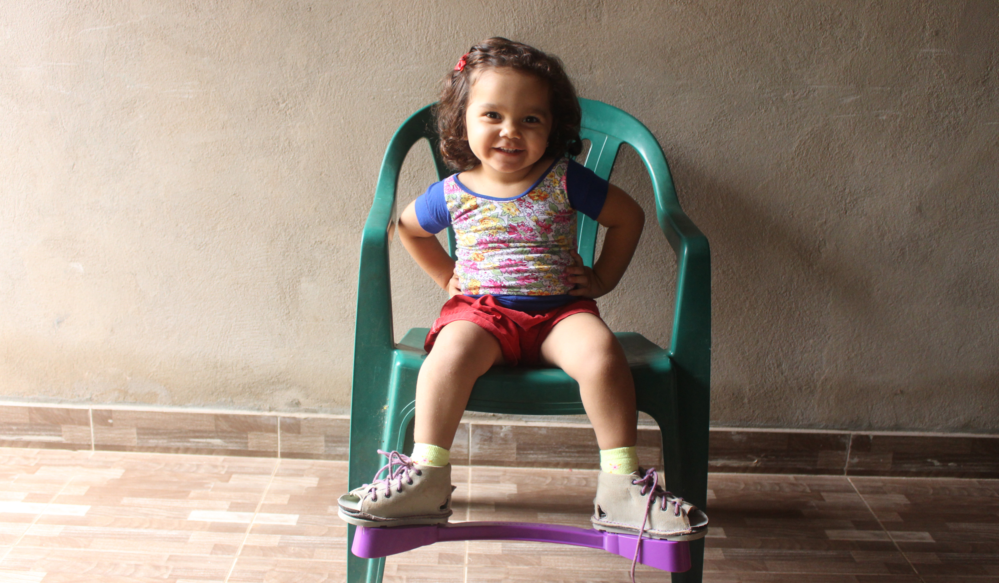 A child sat on a chair using a clubfoot brace