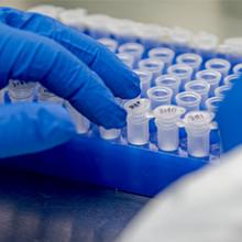 In vitro diagnostics </br>during COVID-19