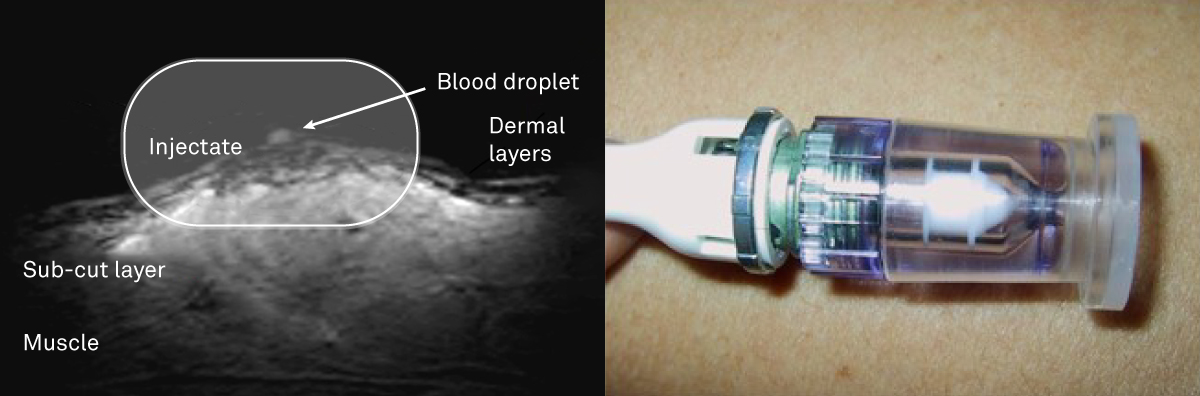 Photo of successful needle free injection and a device