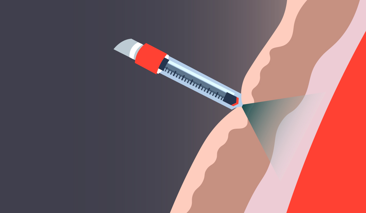 Illustration of a needle free injection