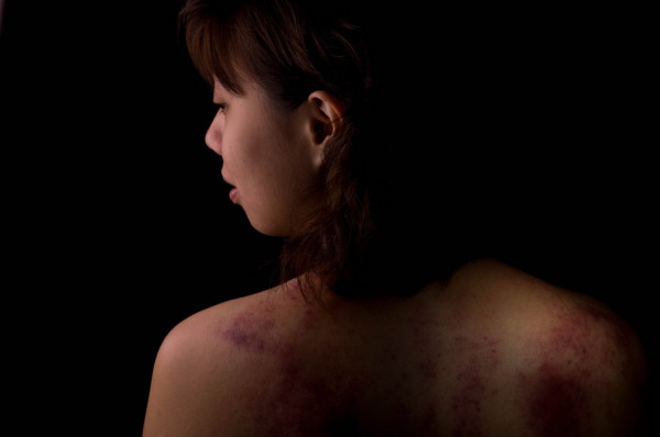 Domestic abuse: how employers can help