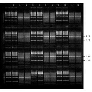 Precast Gels for DNA